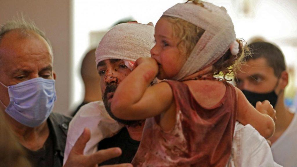 Urgence liban - blessés